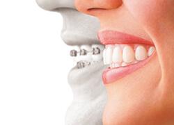 アーブル歯科クリニック