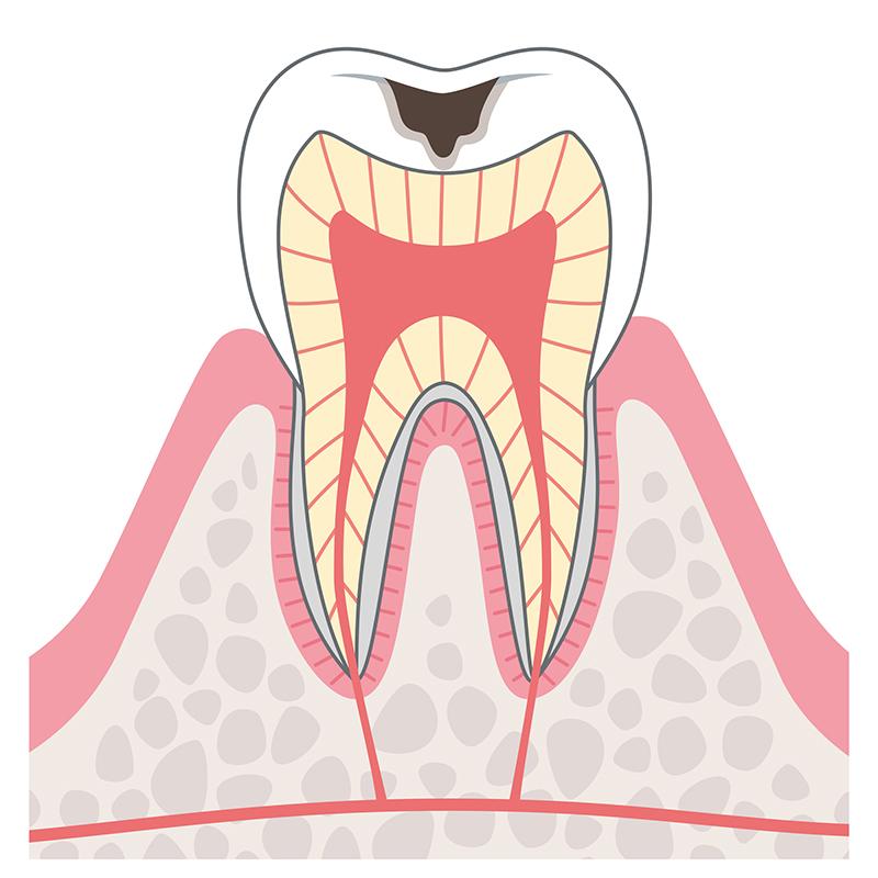 C1 エナメル質に達したむし歯