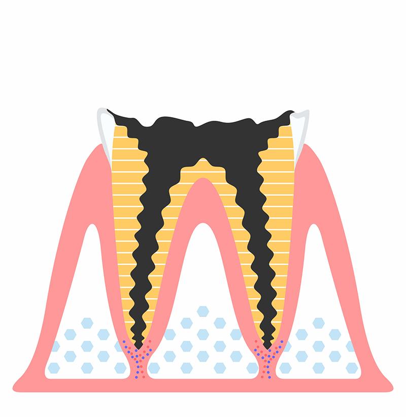 C4 歯根にまで達したむし歯