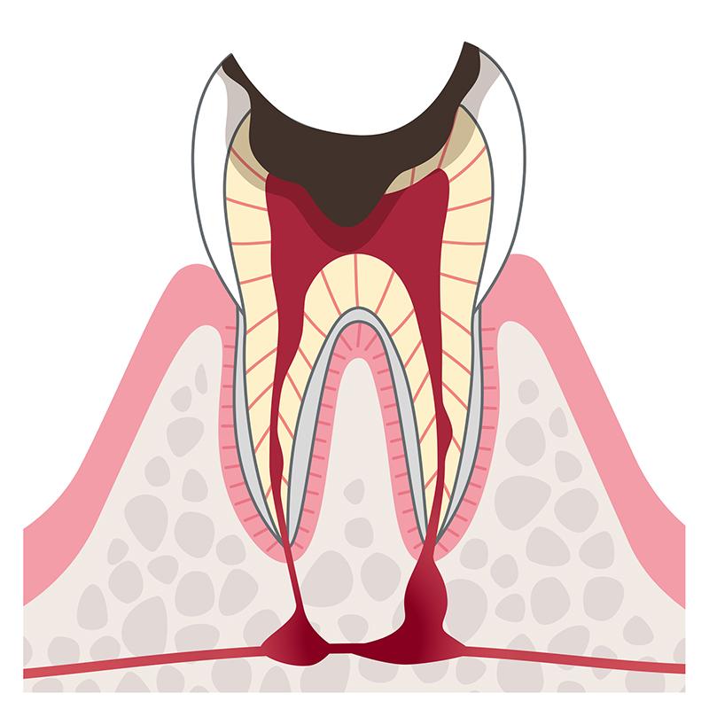 C3 神経に達したむし歯