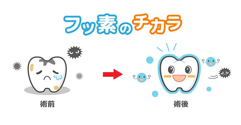 フッ素の働きと使用方法