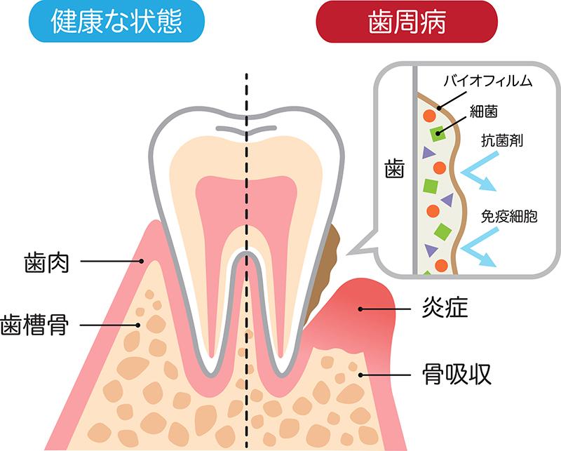 歯石取り・着色取り(歯周病治療)