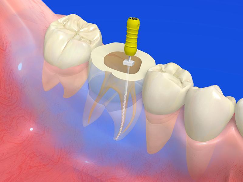 根管治療(歯の神経・根の治療)