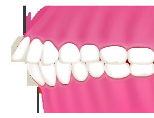 出っ歯(上顎前突 じょうがくぜんとつ)