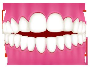 前歯が閉じない(開咬 かいこう)