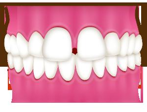 すきっ歯(空隙歯列 くうげきしれつ)